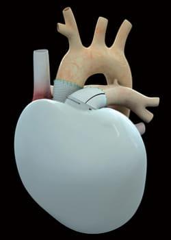 le coeur artificiel de carmat est conçu pour s'autoréguler.