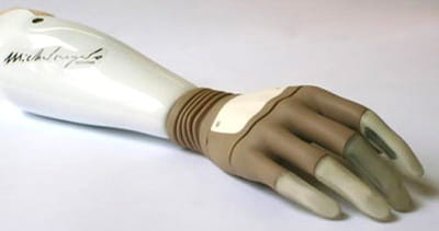 la main michael angelo a été greffée avec succès en 2009.