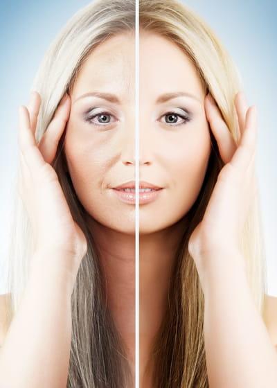Comme faire le masque pour la personne de la peau sèche de largile